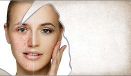сет при акне и проблемна кожа на лицето