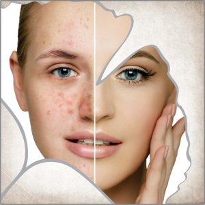 Кожни обриви, акне, проблема и мазна кожа на лицето, прекомерно отделяне на себум и омазняване кожата на лицето